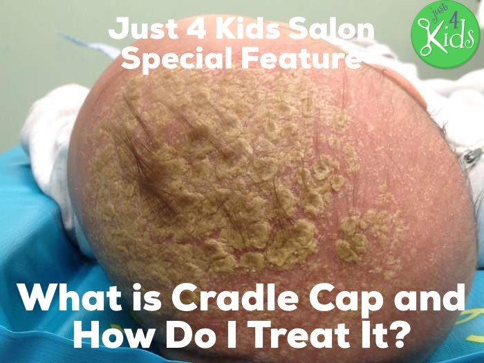 What is Cradle Cap and How to Treat It with Pure Coconut Oil?